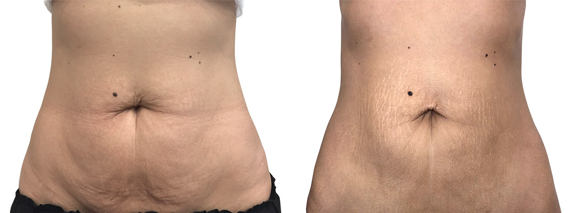 Vaser Lipo liposuction - shaping a sporty figure - dissolution of fat with ultrasounds