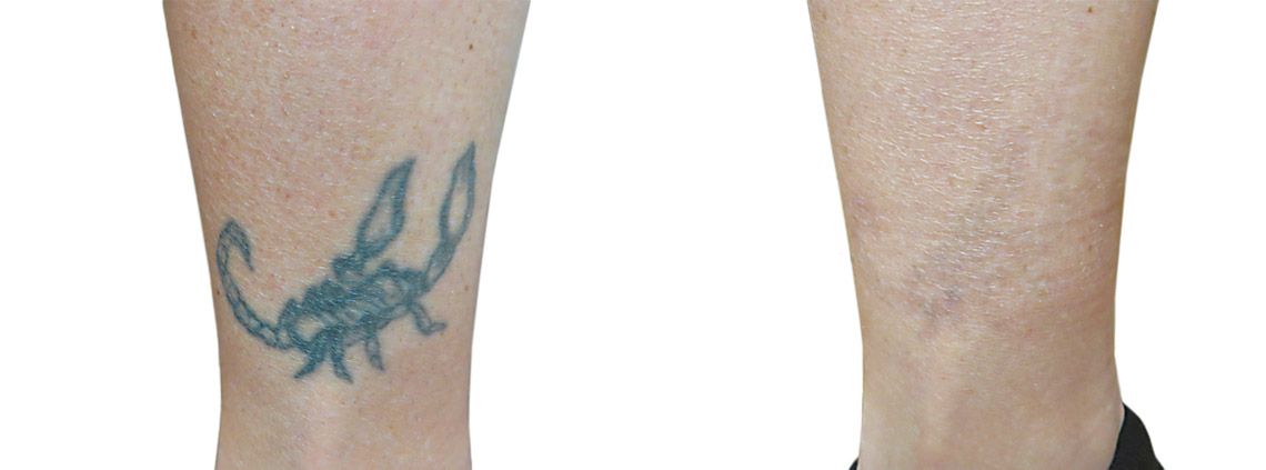 Laser removal of tattoos and permanent make-up Q-Switch (Spectra)