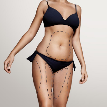 VASER LIPO HD ultrasound liposuction