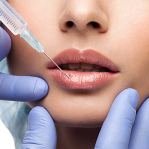 Lip augmentation and lifting with hyaluronic acid