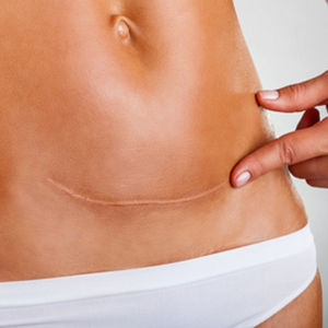 Laser removal of scars and stretch marks
