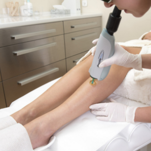 PAIN-FREE LASER HAIR REMOVAL (EPILATION) (GENTLEMAX)